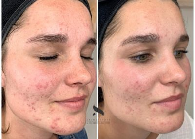Treating active acne & acne scarring