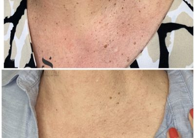 Skin Tag Removal with Plexr